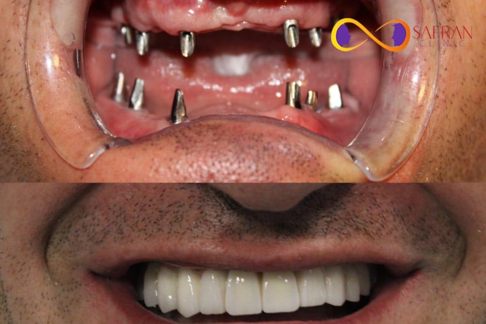 implant treatment Safran Clinic